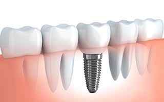 Implant Hamilton New Jersey